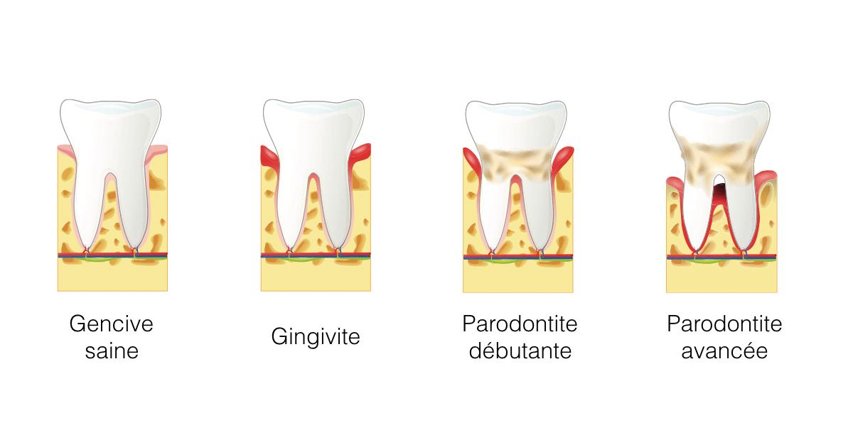 Parodontie (traitement des problèmes de gencives)