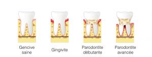 Visuel sur la parodontite