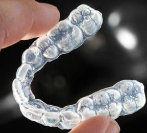 L'orthodontie avec Invisalign